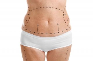 tummy tuck cosmetic surgery thailand