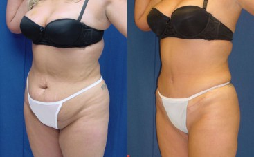 Liposuction surgery in Thailand