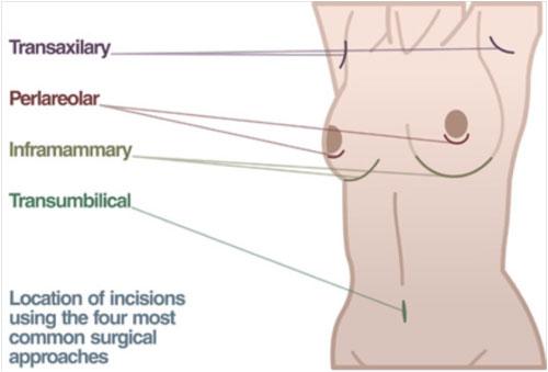 breast implant diagram